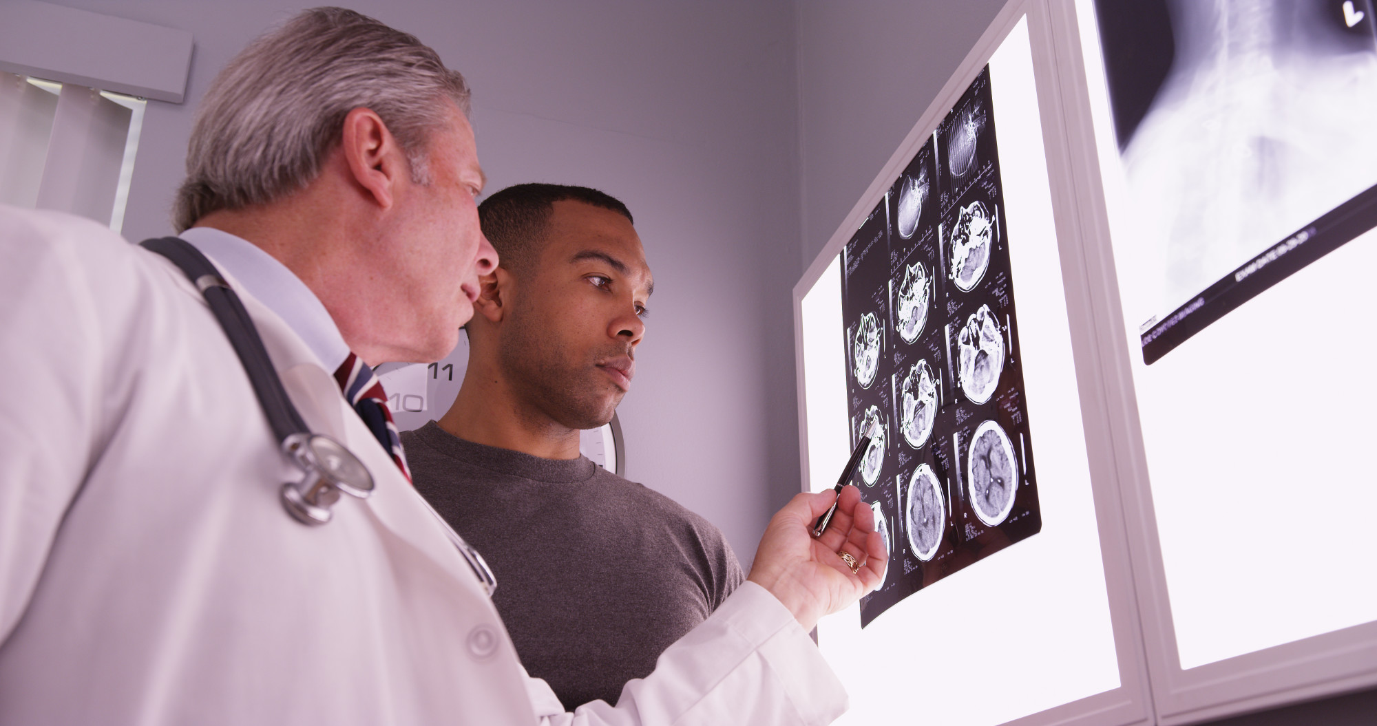 It's important to keep your brain healthy, but problems do arise. Here are the different types of brain injuries you need to be familiar with.